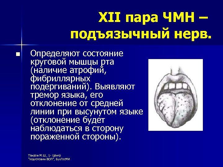 XII пара ЧМН – подъязычный нерв. n Определяют состояние круговой мышцы рта (наличие атрофий,