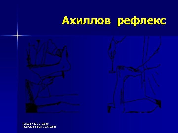 Ахиллов рефлекс Таиров М. Ш. , 1 - Центр