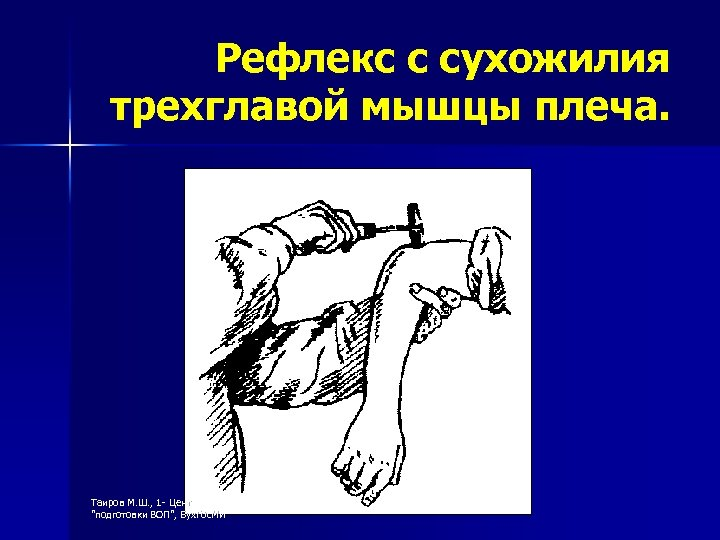Рефлекс с сухожилия трехглавой мышцы плеча. Таиров М. Ш. , 1 - Центр