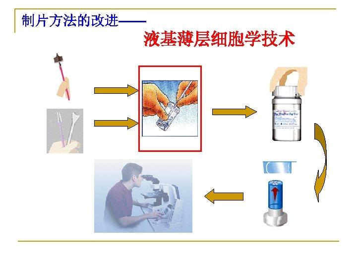 制片方法的改进—— 液基薄层细胞学技术