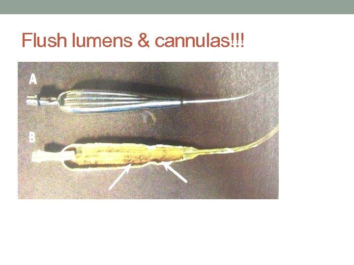 Flush lumens & cannulas!!!