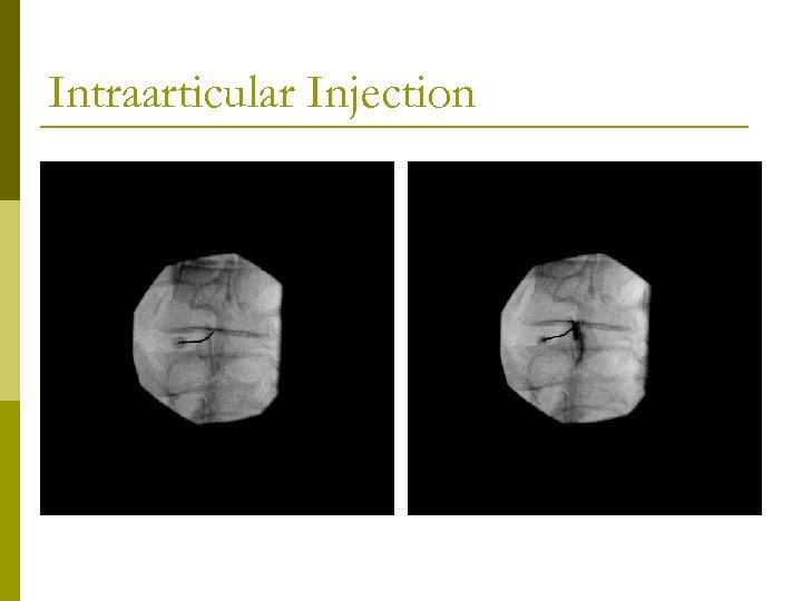 Intraarticular Injection