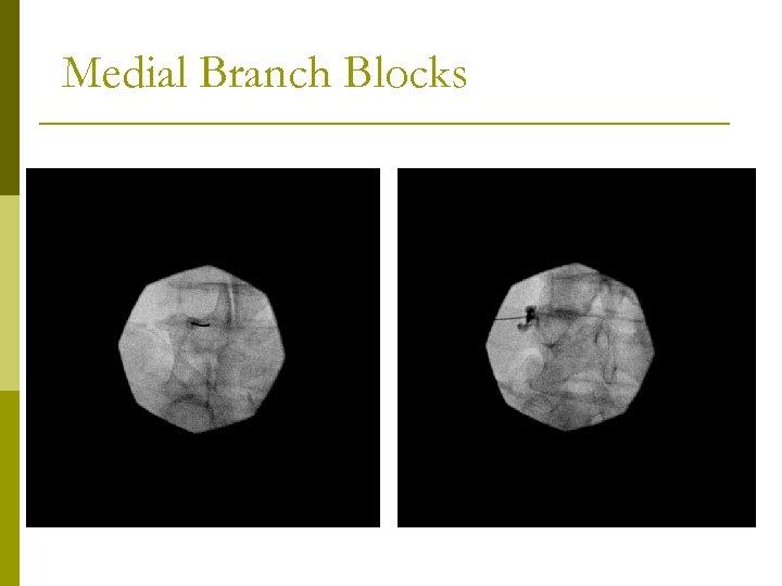 Medial Branch Blocks
