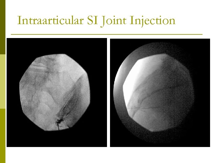 Intraarticular SI Joint Injection