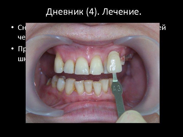 Дневник (4). Лечение. • Снятие зубных отложений с зубов верхней челюсти. • Проведено определение