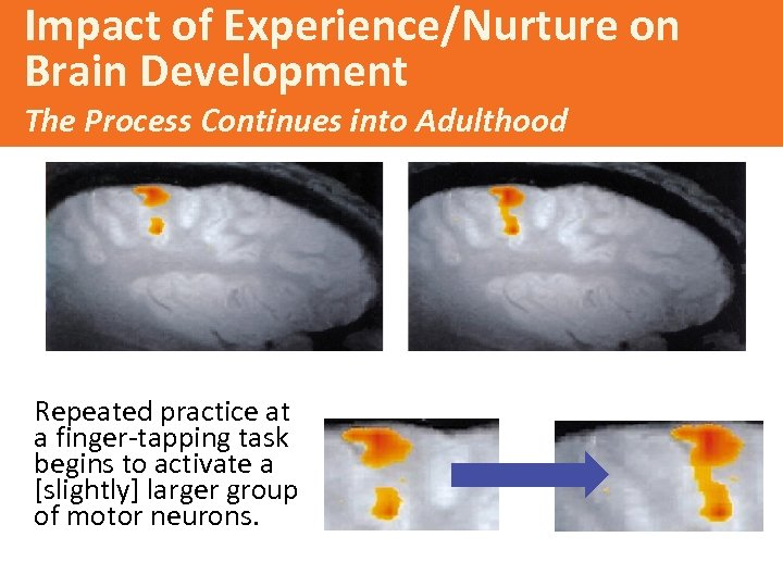 Impact of Experience/Nurture on Brain Development The Process Continues into Adulthood Repeated practice at