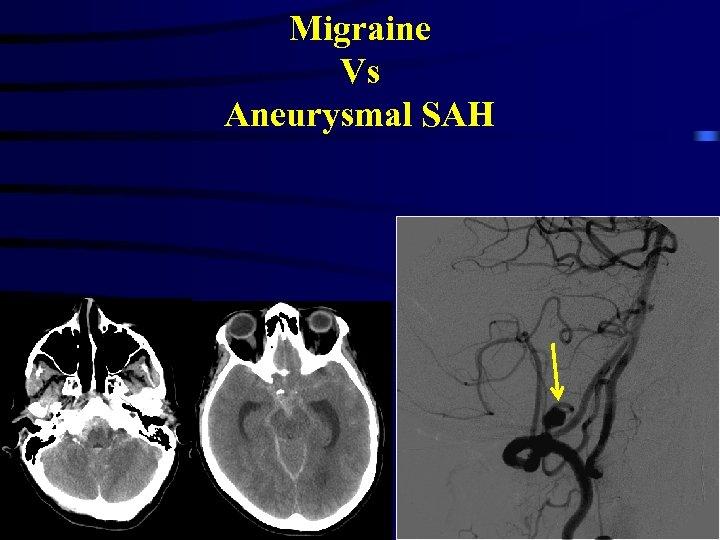 Migraine Vs Aneurysmal SAH