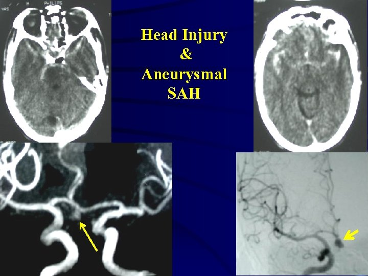 Head Injury & Aneurysmal SAH