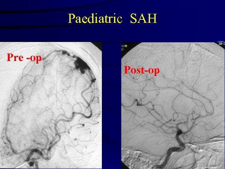Paediatric SAH Pre -op Post-op