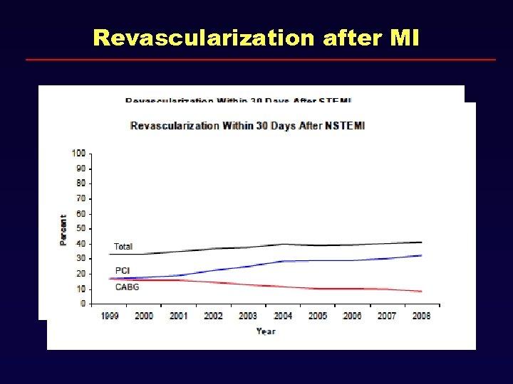 Revascularization after MI