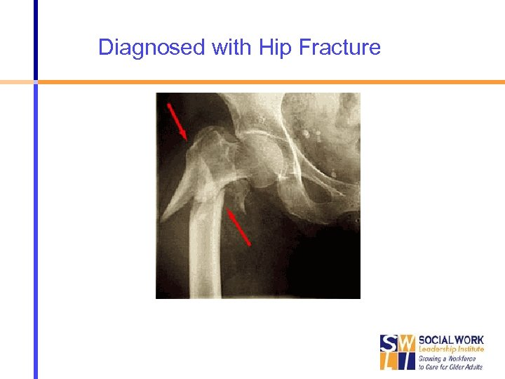 Diagnosed with Hip Fracture