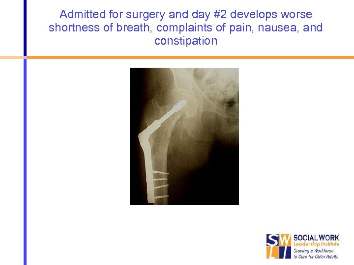 Admitted for surgery and day #2 develops worse shortness of breath, complaints of pain,