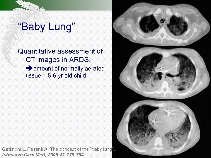 """""""Baby Lung"""" Quantitative assessment of CT images in ARDS. amount of normally aerated tissue"""