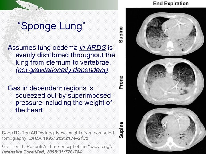 """""""Sponge Lung"""" Assumes lung oedema in ARDS is evenly distributed throughout the lung from"""