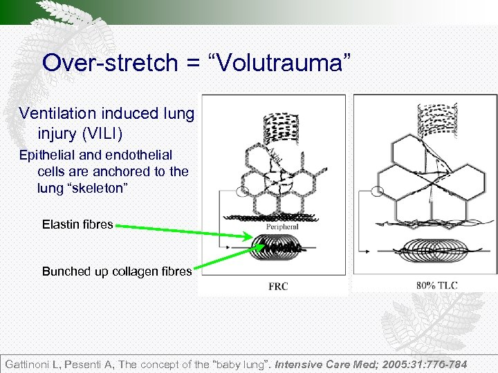 """Over-stretch = """"Volutrauma"""" Ventilation induced lung injury (VILI) Epithelial and endothelial cells are anchored"""