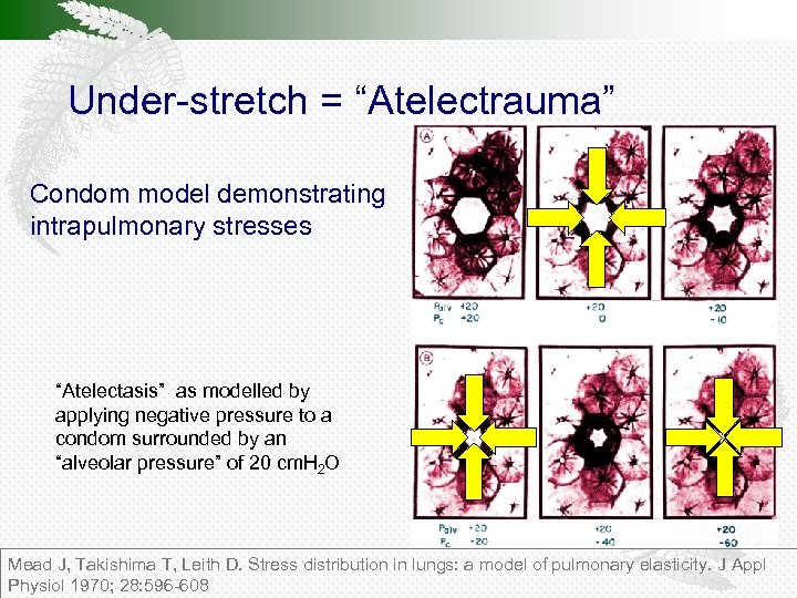 """Under-stretch = """"Atelectrauma"""" Condom model demonstrating intrapulmonary stresses """"Atelectasis"""" as modelled by applying negative"""