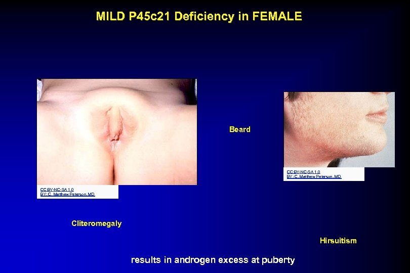 MILD P 45 c 21 Deficiency in FEMALE Beard CC: BY-NC-SA 1. 0 BY: