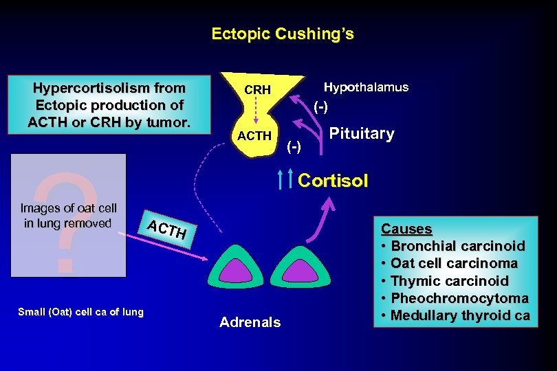 Ectopic Cushing's Hypercortisolism from Ectopic production of ACTH or CRH by tumor. ? Images