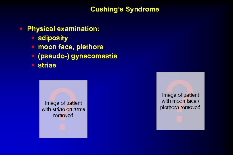 Cushing's Syndrome § Physical examination: § adiposity § moon face, plethora § (pseudo-) gynecomastia