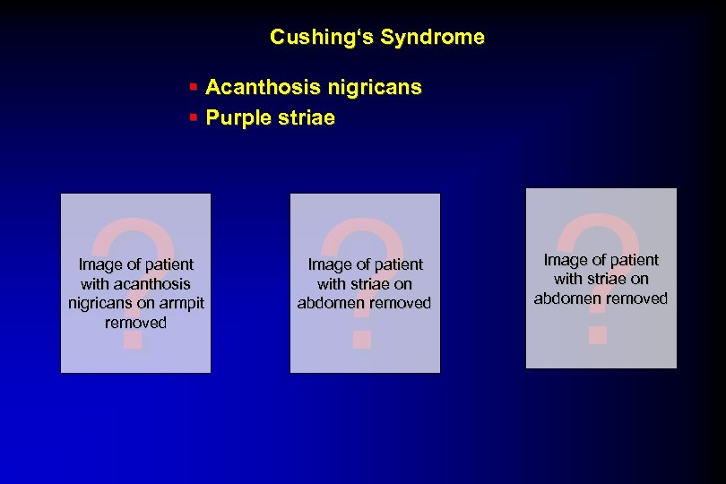 Cushing's Syndrome § Acanthosis nigricans § Purple striae ? ? ? Image of patient