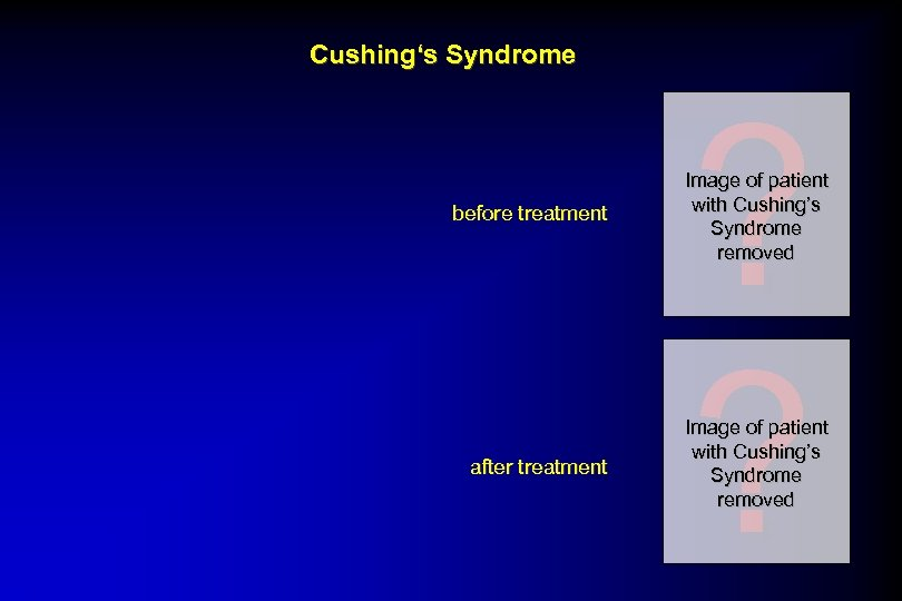 Cushing's Syndrome ? ? before treatment Image of patient with Cushing's Syndrome removed after