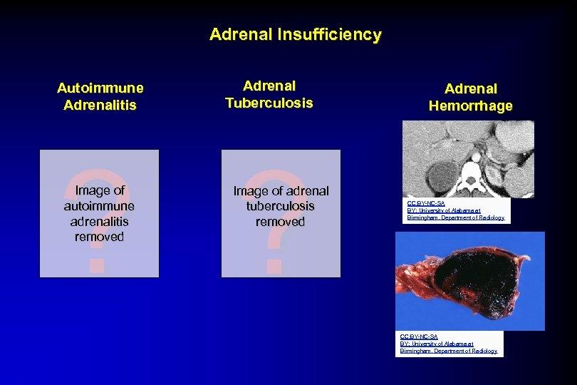 Adrenal Insufficiency Autoimmune Adrenalitis Adrenal Tuberculosis ? ? Image of autoimmune adrenalitis removed Image