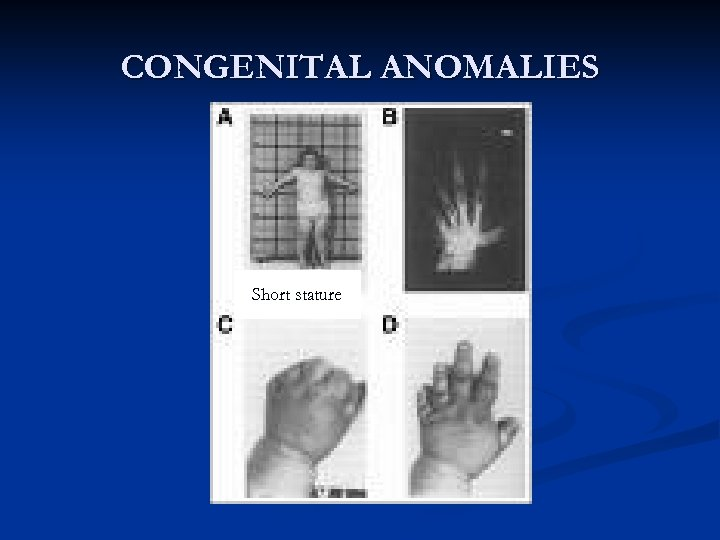 CONGENITAL ANOMALIES Short stature