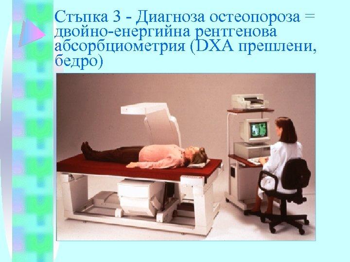 Стъпка 3 - Диагноза остеопороза = двойно-енергийна рентгенова абсорбциометрия (DXA прешлени, бедро)
