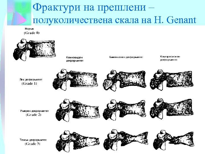 Фрактури на прешлени – полуколичествена скала на H. Genant