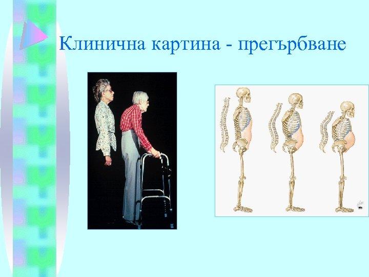 Клинична картина - прегърбване