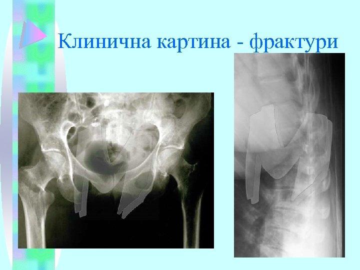 Клинична картина - фрактури