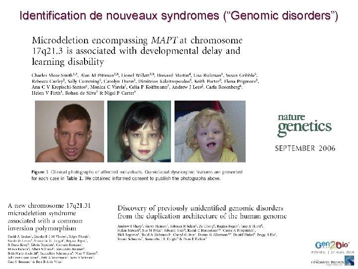 """Identification de nouveaux syndromes (""""Genomic disorders"""")"""