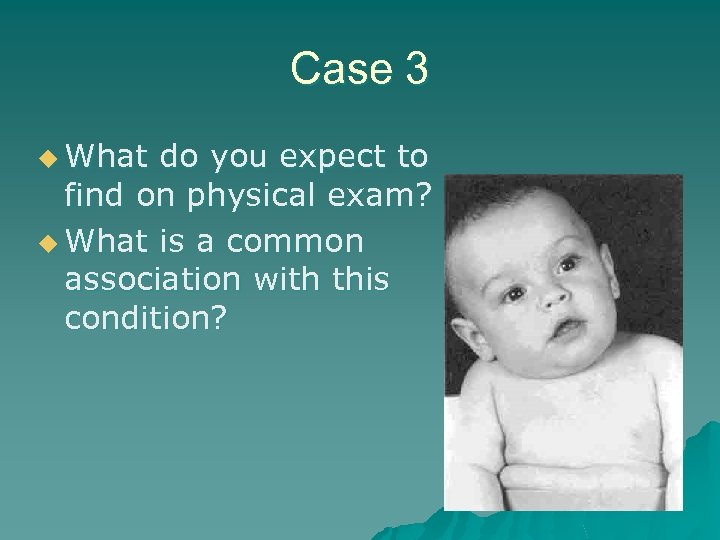 Case 3 u What do you expect to find on physical exam? u What