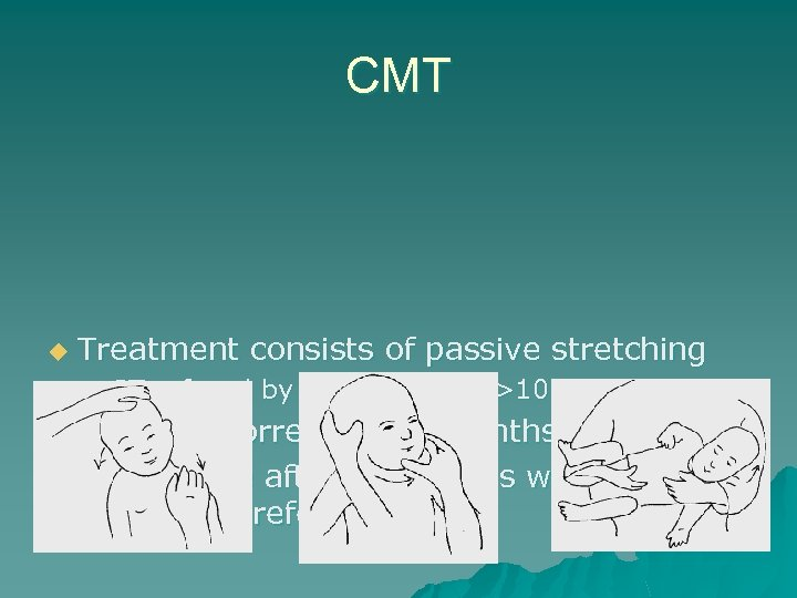 CMT u Treatment consists of passive stretching – PT referral by 2 -3 months