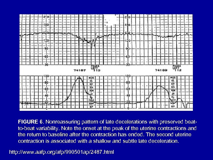 FIGURE 6. Nonreassuring pattern of late decelerations with preserved beatto-beat variability. Note the onset