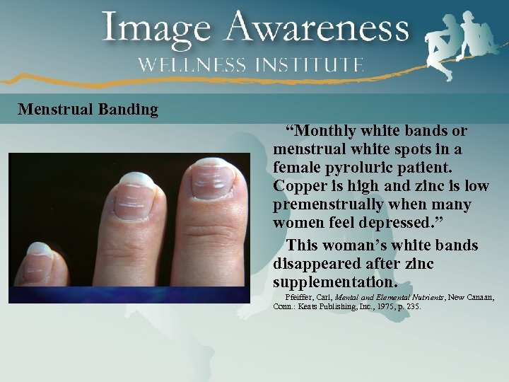 "Menstrual Banding ""Monthly white bands or menstrual white spots in a female pyroluric patient."