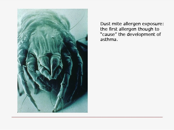 "Dust mite allergen exposure: the first allergen though to ""cause"" the development of asthma."