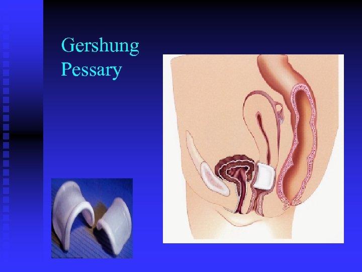 Gershung Pessary