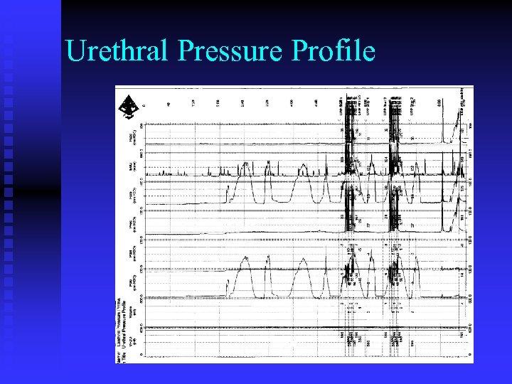 Urethral Pressure Profile