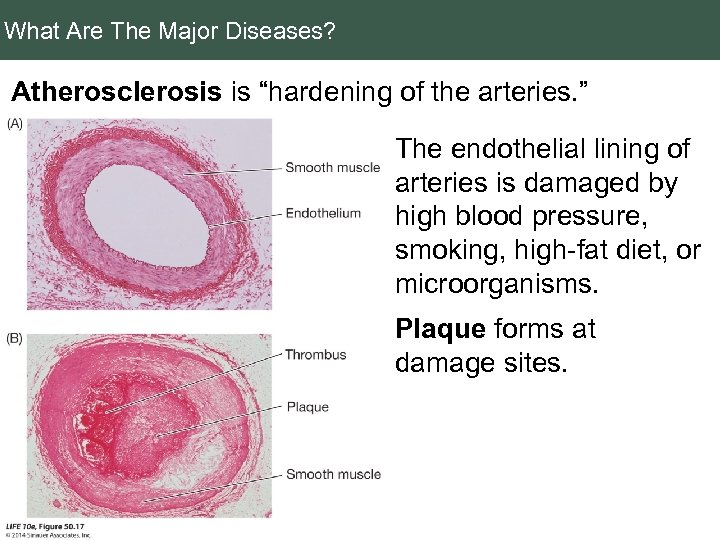"What Are The Major Diseases? Atherosclerosis is ""hardening of the arteries. "" The endothelial"