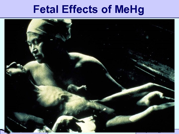 Fetal Effects of Me. Hg A Small Dose of Mercury Toxicology – 10/13/04