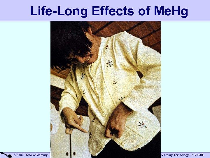 Life-Long Effects of Me. Hg A Small Dose of Mercury Toxicology – 10/13/04