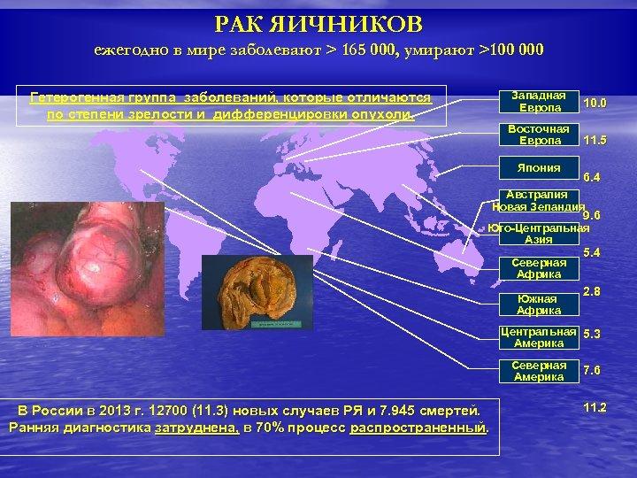 РАК ЯИЧНИКОВ ежегодно в мире заболевают > 165 000, умирают >100 000 Западная Европа