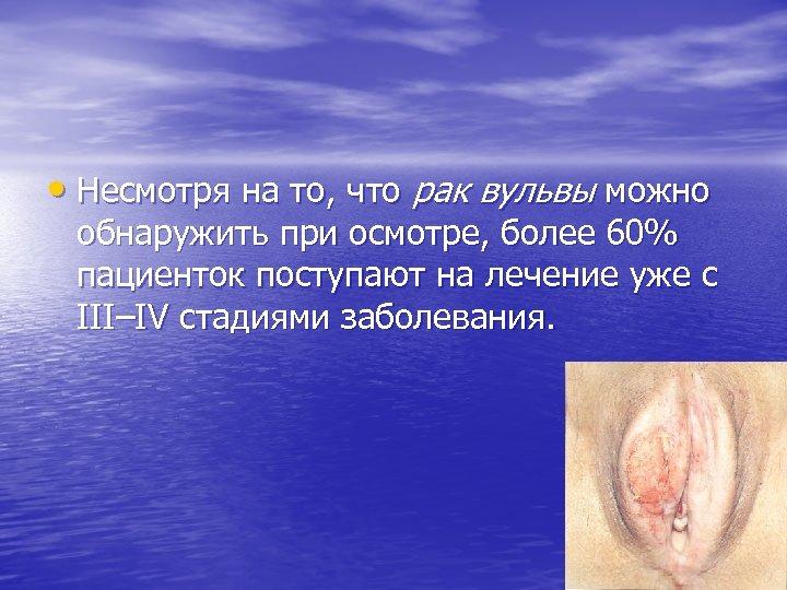 • Несмотря на то, что рак вульвы можно обнаружить при осмотре, более 60%