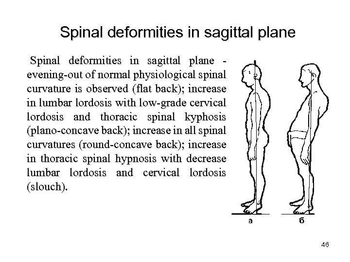 Spinal deformities in sagittal plane - evening-out of normal physiological spinal curvature is observed