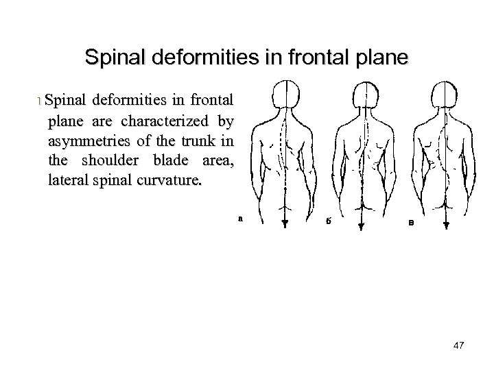 Spinal deformities in frontal plane I Spinal deformities in frontal plane are characterized by