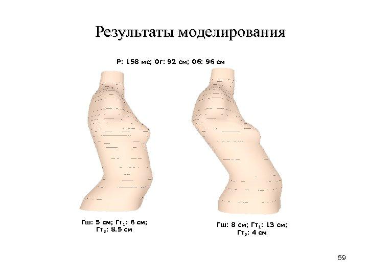 Результаты моделирования Р: 158 мс; Ог: 92 см; Об: 96 см Гш: 5 см;