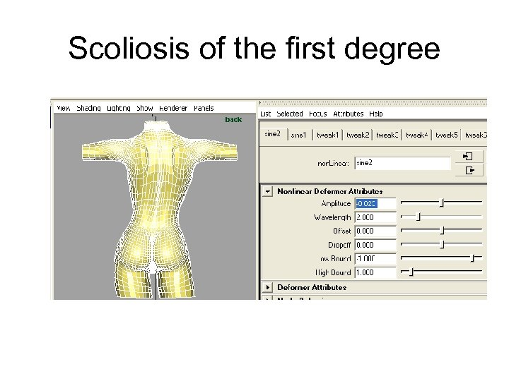 Scoliosis of the first degree