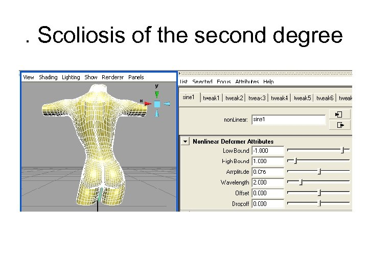 . Scoliosis of the second degree
