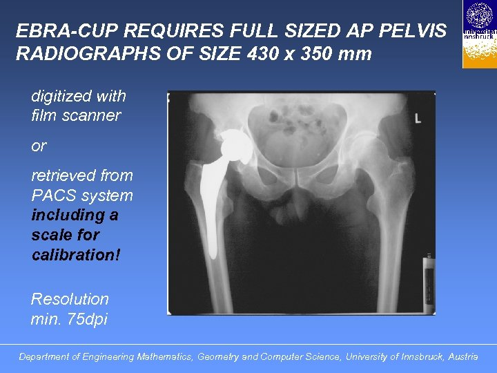 EBRA-CUP REQUIRES FULL SIZED AP PELVIS RADIOGRAPHS OF SIZE 430 x 350 mm digitized